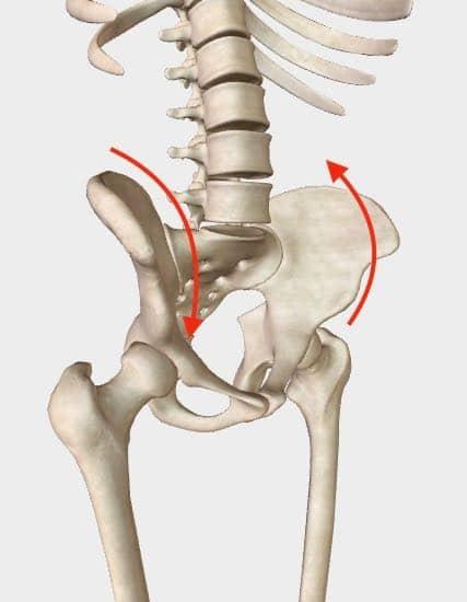 Pelvic Torsion - Right Anterior, Left Posterior